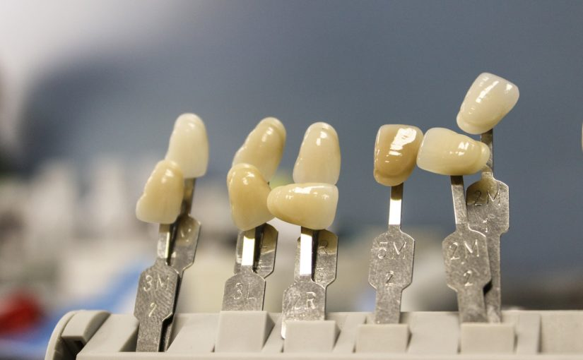 Piękne zdrowe zęby dodatkowo efektowny uroczy uśmiech to powód do dumy.